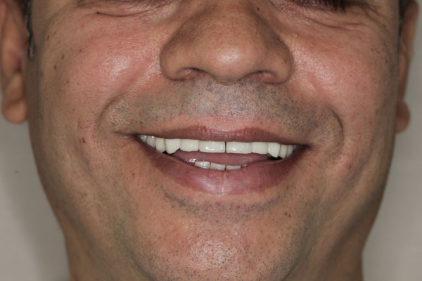 Mon sourire après les soins ;-))