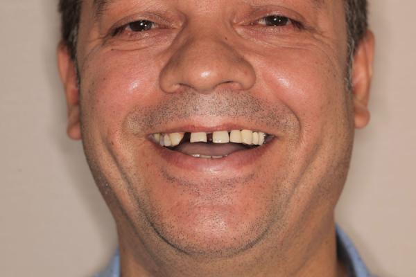 Mon sourire avant :(